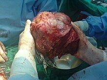 220px-Big_Liver_Tumor.JPG